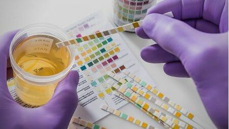 Urine Testing for Diabetes