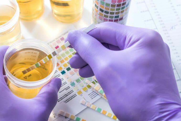 Urine test for potassium levels