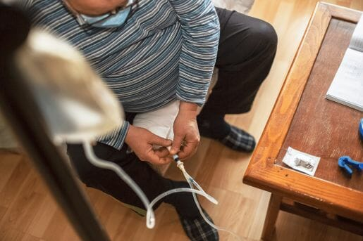 Man having Peritoneal dialysis