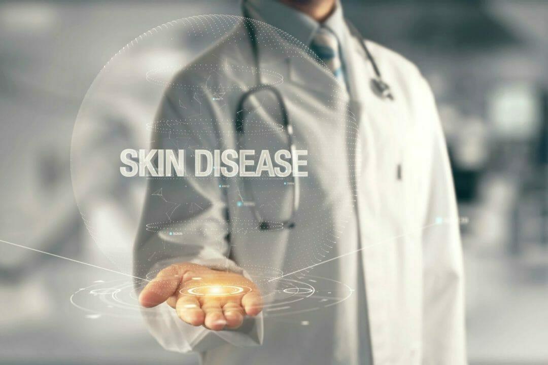 skin disease write up